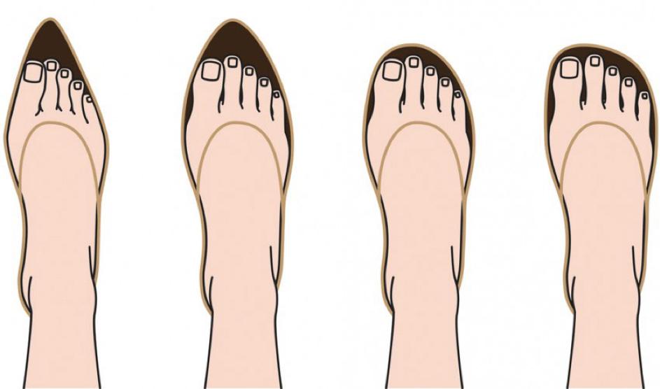 Forme de pieds - chaussure à talon.png