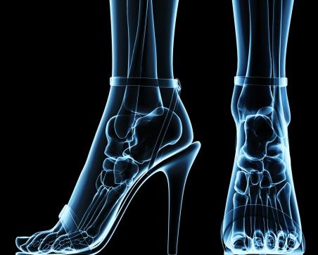 scanner-pieds-talons-hauts