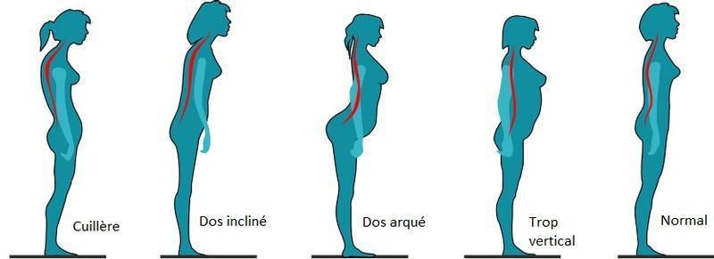 illustration-mauvaises-postures-du-corps