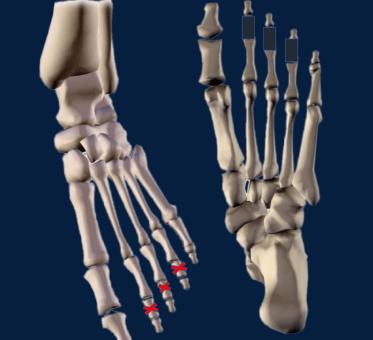 illustration-squelette-pied