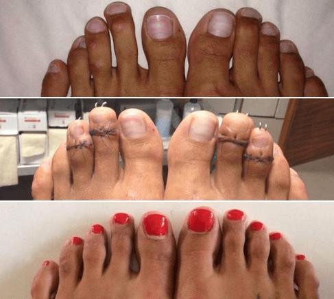 photo-pieds-opération-reduction-orteils